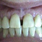 Espacios entre dientes (Diastemas) - Antes