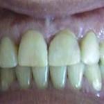 Espacios entre dientes (Diastemas) - Después