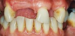 Implantes dentales - Antes