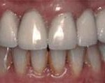 Implantes dentales - Después