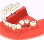 Reposición por un implante