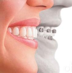 Ortodoncia sin brackets, técnica Clear Aligner