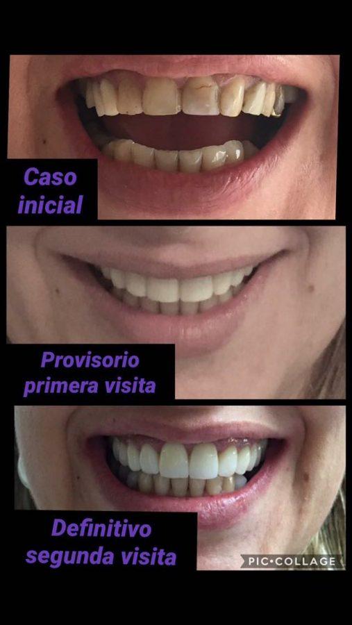 Estética Dental - Casos