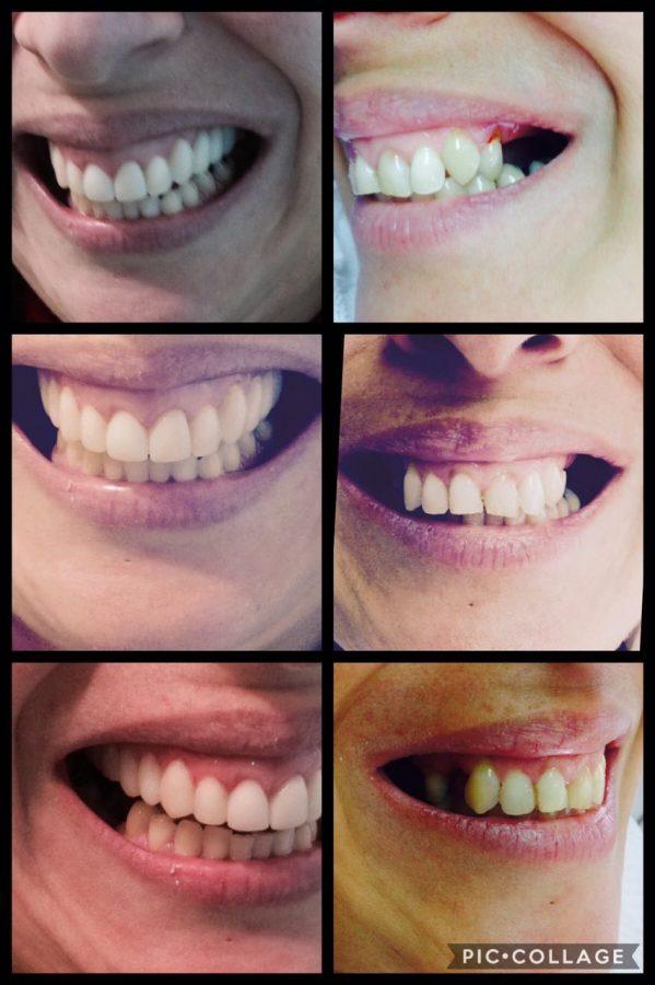 Casos - Implantes Dentales