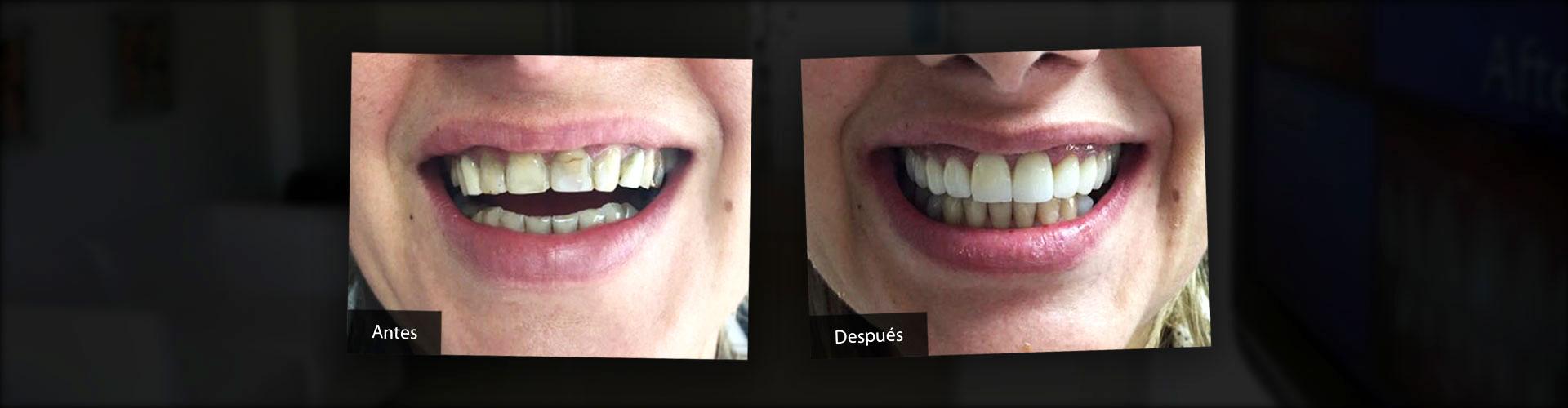 Estética Dental - Antes y Después
