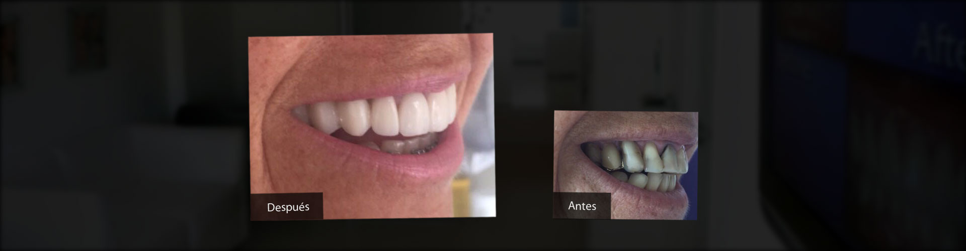 Implantes Dentales, Estética Dental, Ortodoncia