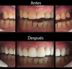 Implantes Dentales - Antes y Después