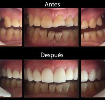 costo implante dental mexico